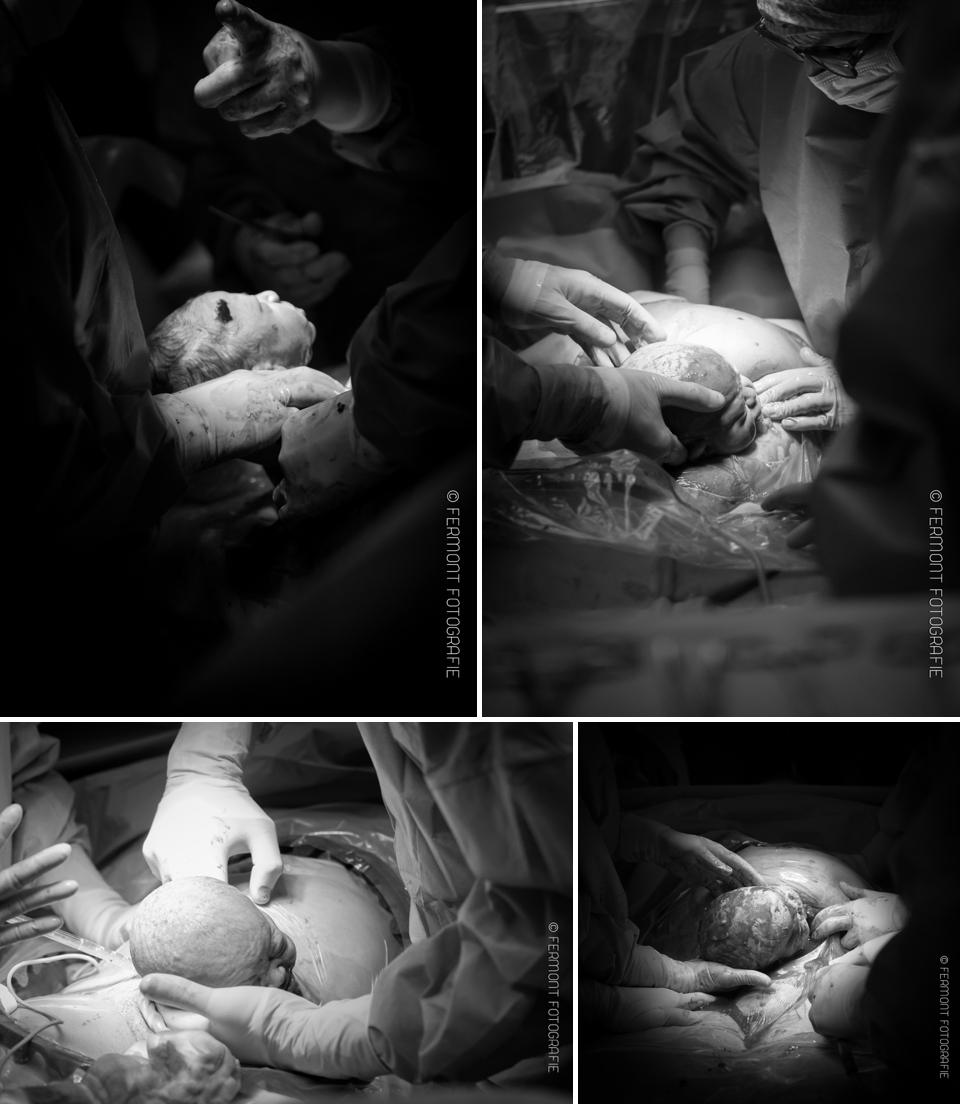 Hoofdje geboren