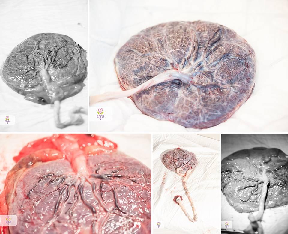 placenta-kindsgedeelte