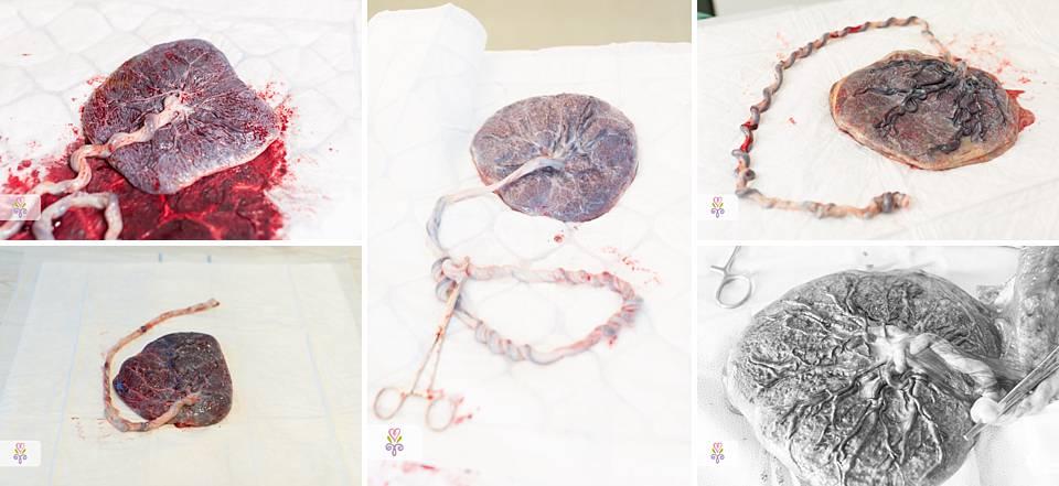 placenta-navelstrenginsertie