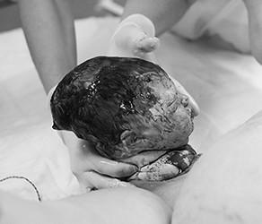 """Fotoserie """"De geboorte van het hoofdje"""""""